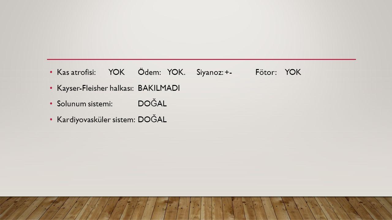 Kas atrofisi: YOK Ödem: YOK. Siyanoz: +- Fötor: YOK