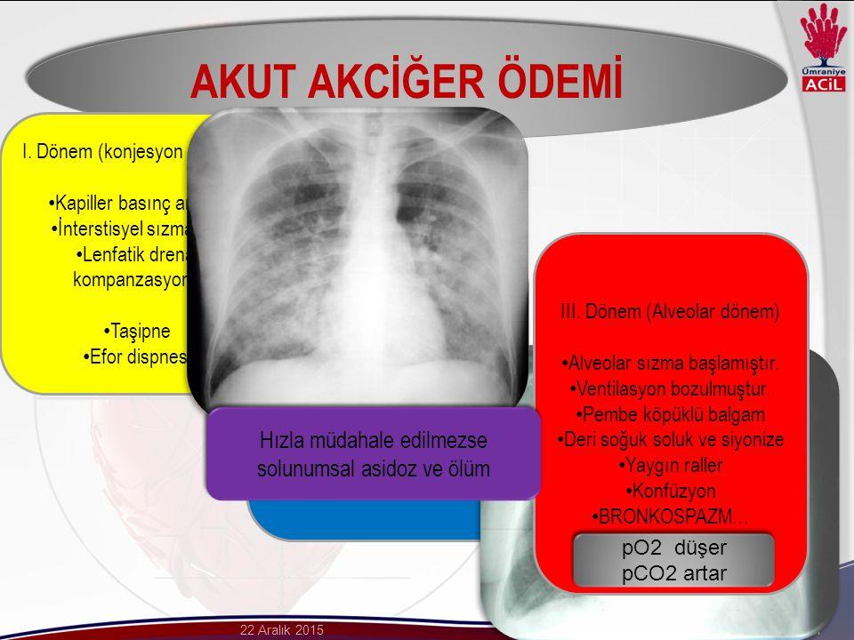 AKUT AKCİĞER ÖDEMİ Hızla müdahale edilmezse solunumsal asidoz ve ölüm