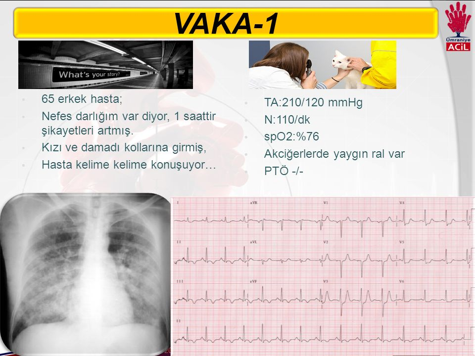VAKA-1 65 erkek hasta; TA:210/120 mmHg