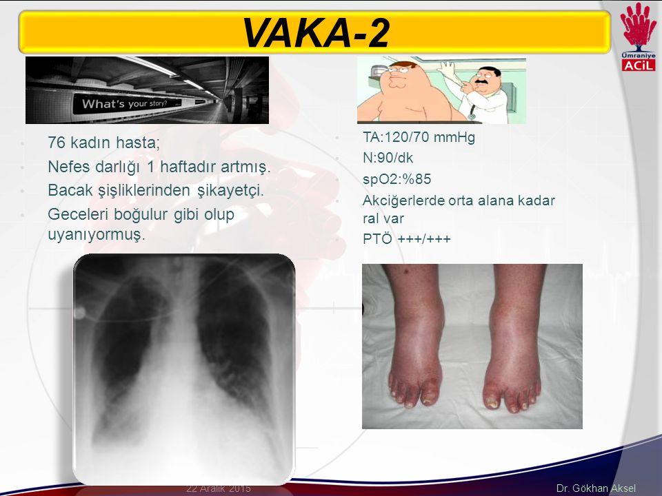 VAKA-2 76 kadın hasta; Nefes darlığı 1 haftadır artmış.
