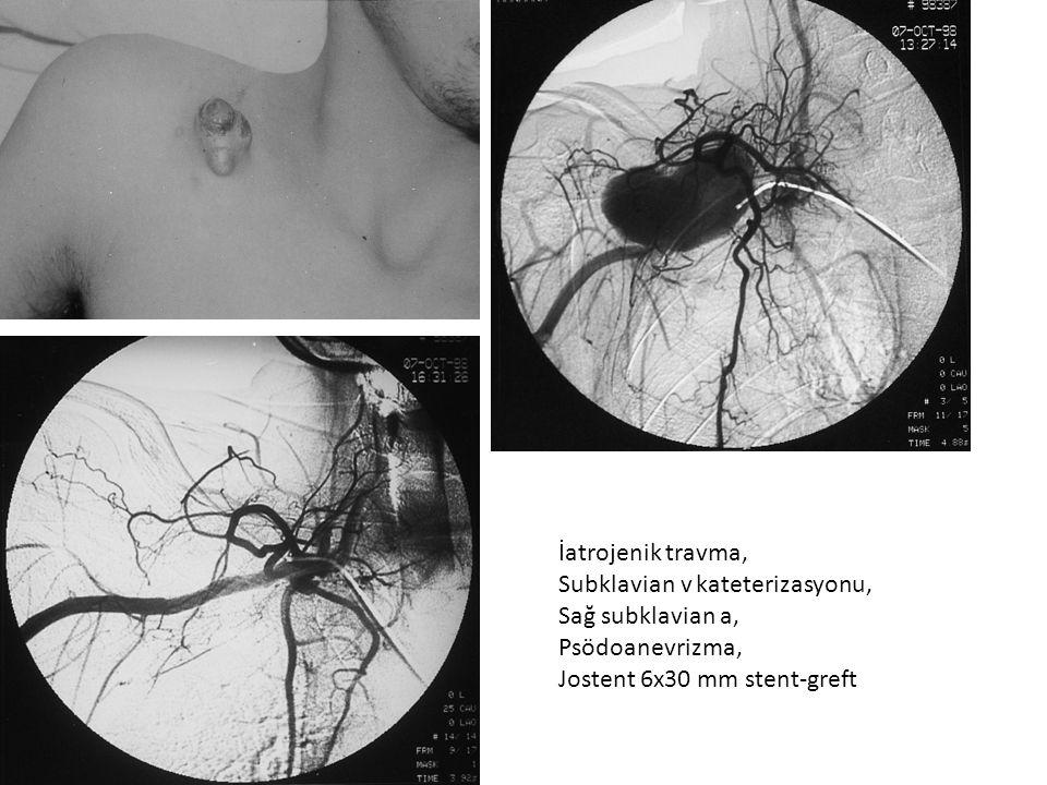 İatrojenik travma, Subklavian v kateterizasyonu, Sağ subklavian a, Psödoanevrizma, Jostent 6x30 mm stent-greft.