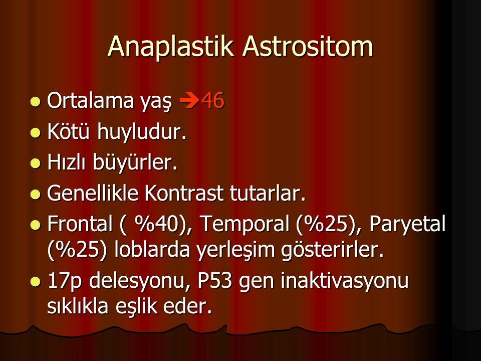 Anaplastik Astrositom
