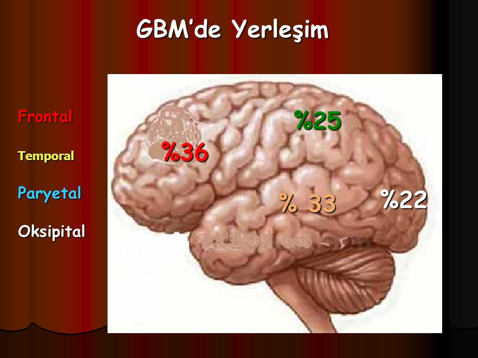GBM'de Yerleşim Frontal Temporal Paryetal Oksipital %25 %36 %22 % 33