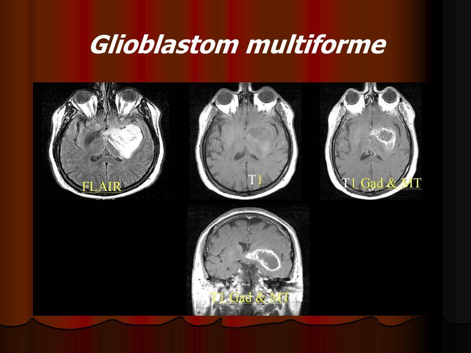 Glioblastom multiforme