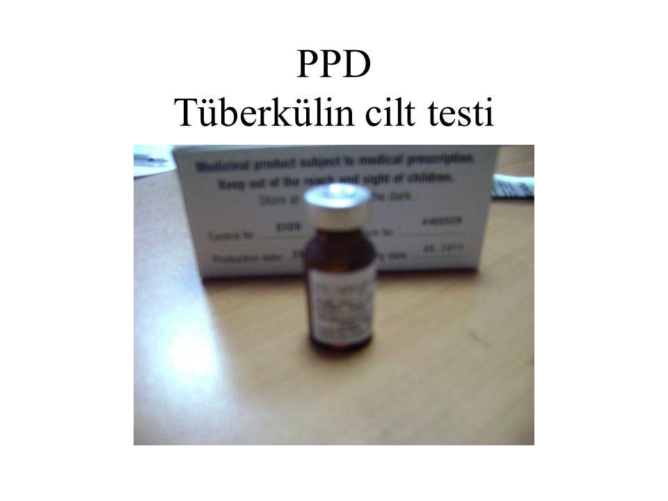 PPD Tüberkülin cilt testi