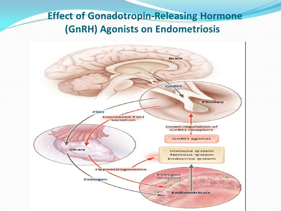 . Effect of Gonadotropin-Releasing Hormone (GnRH) Agonists on Endometriosis