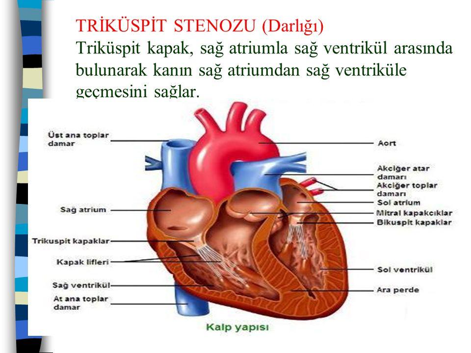 TRİKÜSPİT STENOZU (Darlığı) Triküspit kapak, sağ atriumla sağ ventrikül arasında bulunarak kanın sağ atriumdan sağ ventriküle geçmesini sağlar.