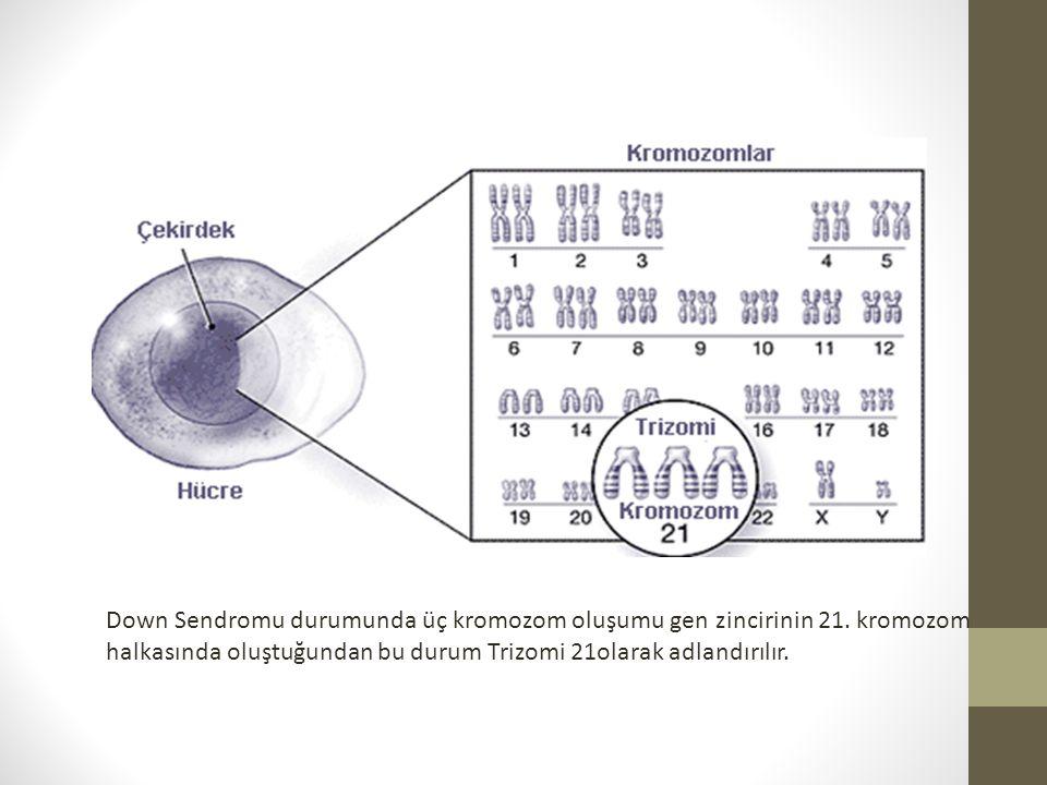 Down Sendromu durumunda üç kromozom oluşumu gen zincirinin 21