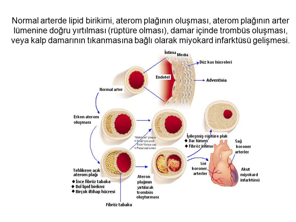 Normal arterde lipid birikimi, aterom plağının oluşması, aterom plağının arter lümenine doğru yırtılması (rüptüre olması), damar içinde trombüs oluşması, veya kalp damarının tıkanmasına bağlı olarak miyokard infarktüsü gelişmesi.