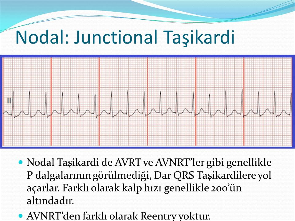 Nodal: Junctional Taşikardi