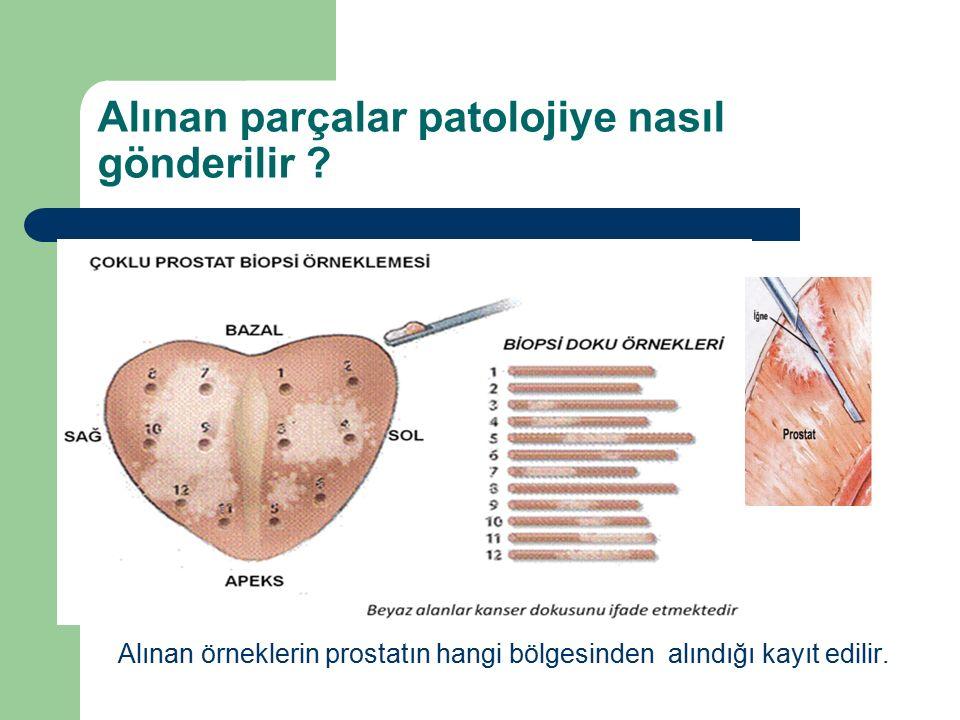Alınan parçalar patolojiye nasıl gönderilir