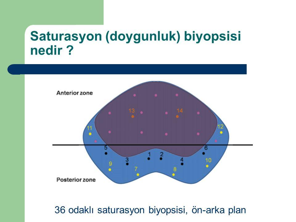 Saturasyon (doygunluk) biyopsisi nedir