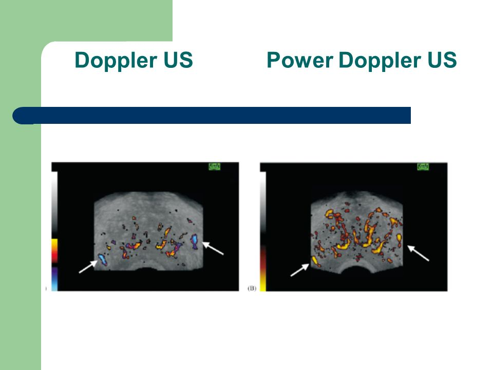 Doppler US Power Doppler US