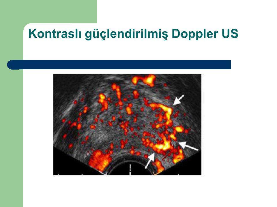Kontraslı güçlendirilmiş Doppler US