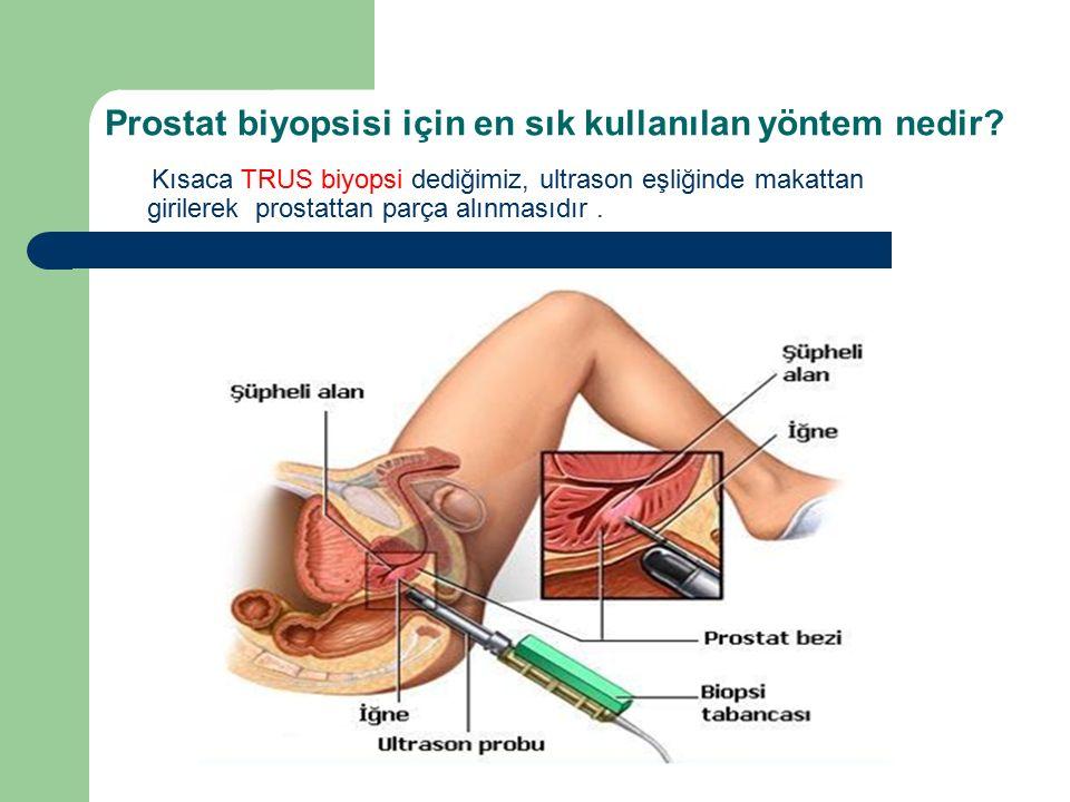 Prostat biyopsisi için en sık kullanılan yöntem nedir