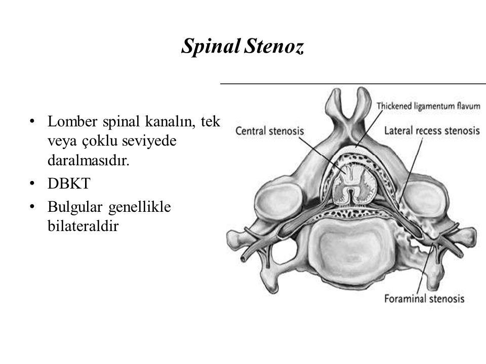 Spinal Stenoz Lomber spinal kanalın, tek veya çoklu seviyede daralmasıdır.