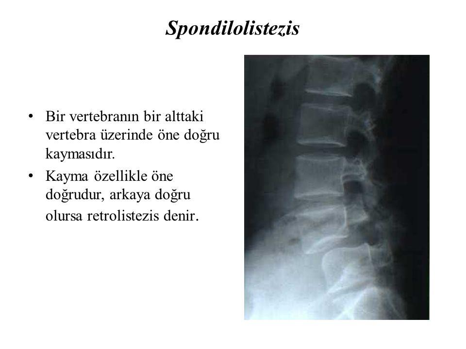 Spondilolistezis Bir vertebranın bir alttaki vertebra üzerinde öne doğru kaymasıdır.