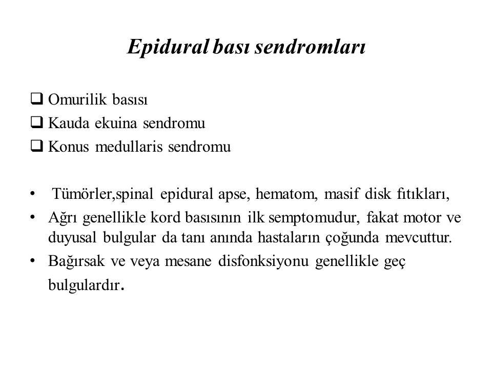 Epidural bası sendromları