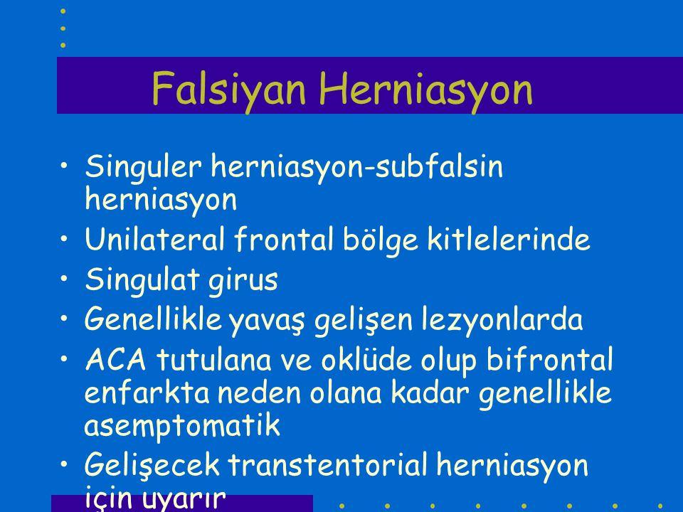 Falsiyan Herniasyon Singuler herniasyon-subfalsin herniasyon