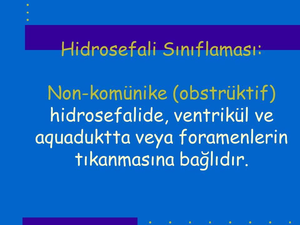 Hidrosefali Sınıflaması: Non-komünike (obstrüktif) hidrosefalide, ventrikül ve aquaduktta veya foramenlerin tıkanmasına bağlıdır.