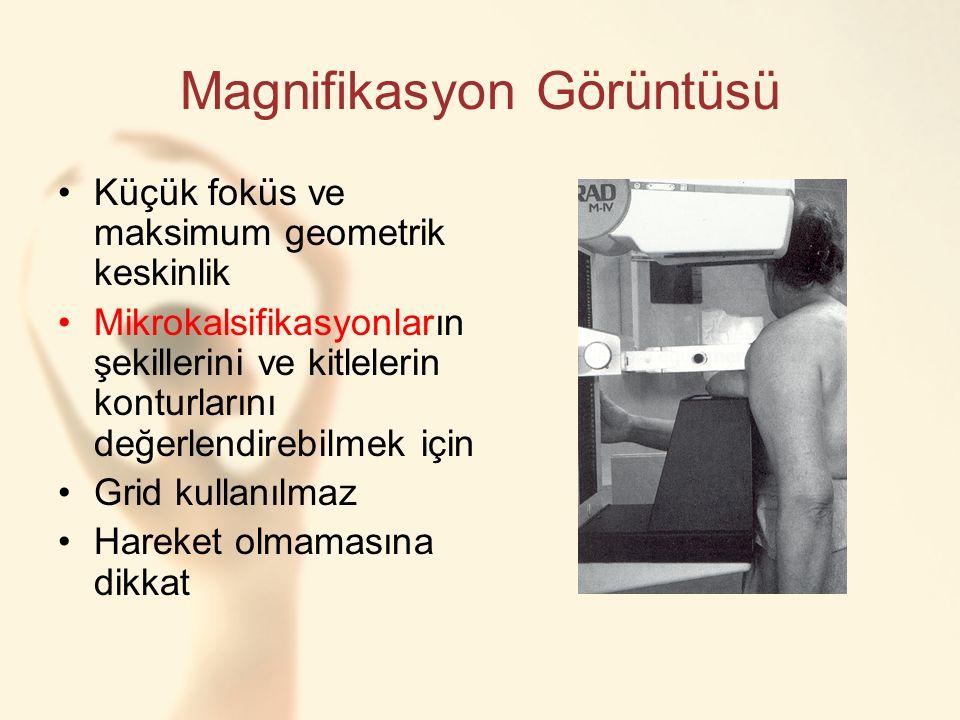 Magnifikasyon Görüntüsü