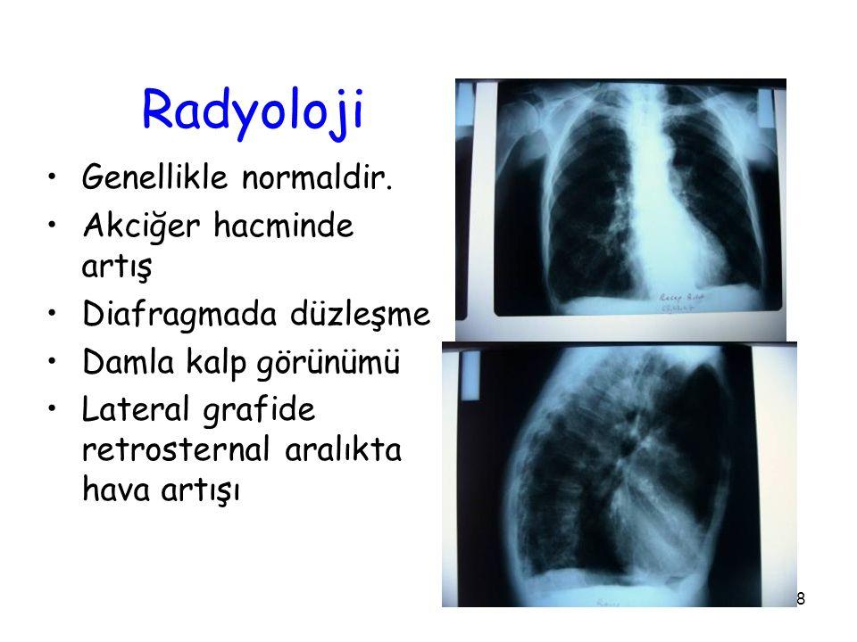 Radyoloji Genellikle normaldir. Akciğer hacminde artış