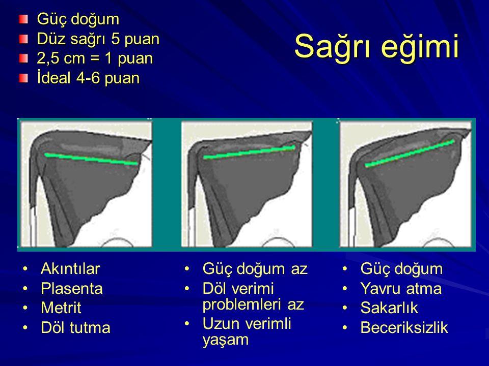 Sağrı eğimi Güç doğum Düz sağrı 5 puan 2,5 cm = 1 puan İdeal 4-6 puan