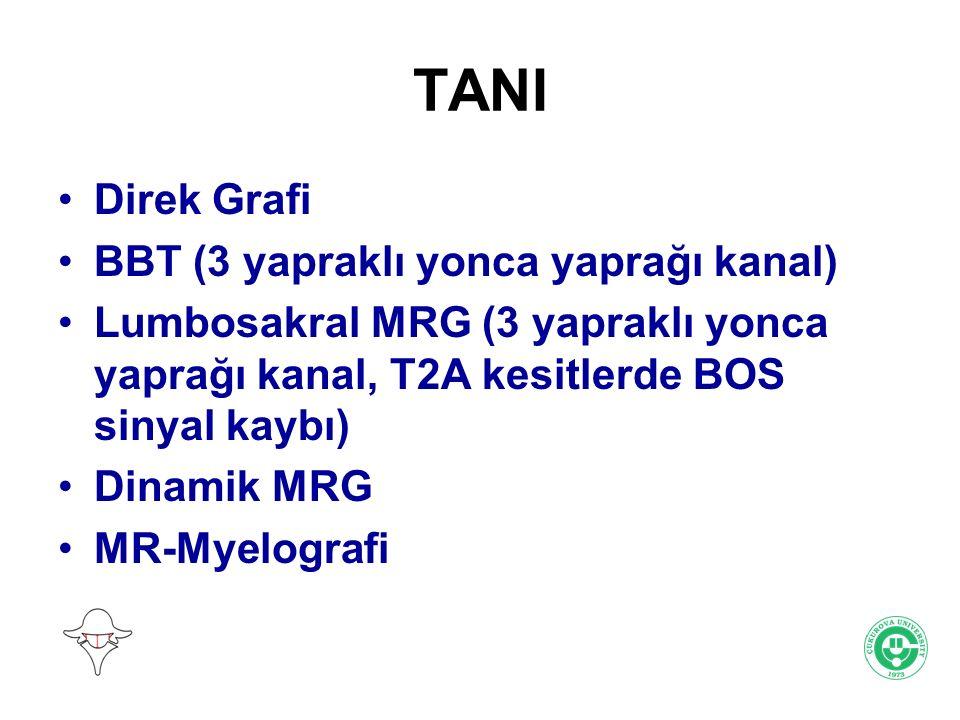 TANI Direk Grafi BBT (3 yapraklı yonca yaprağı kanal)