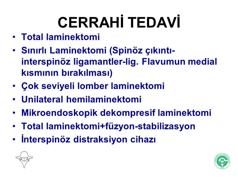CERRAHİ TEDAVİ Total laminektomi