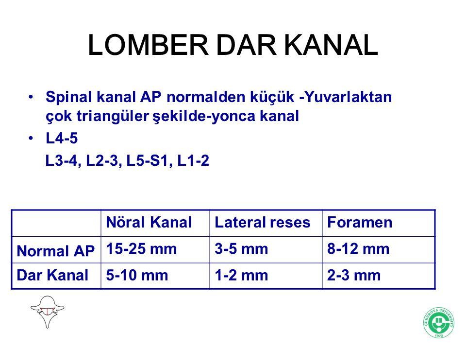 LOMBER DAR KANAL Spinal kanal AP normalden küçük -Yuvarlaktan çok triangüler şekilde-yonca kanal. L4-5.