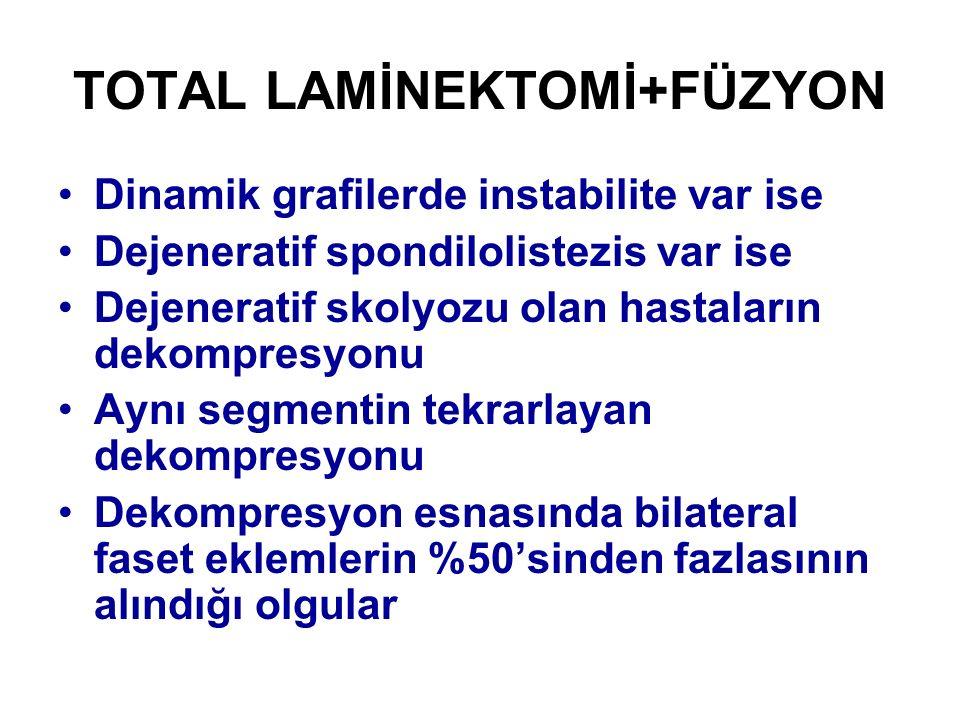 TOTAL LAMİNEKTOMİ+FÜZYON