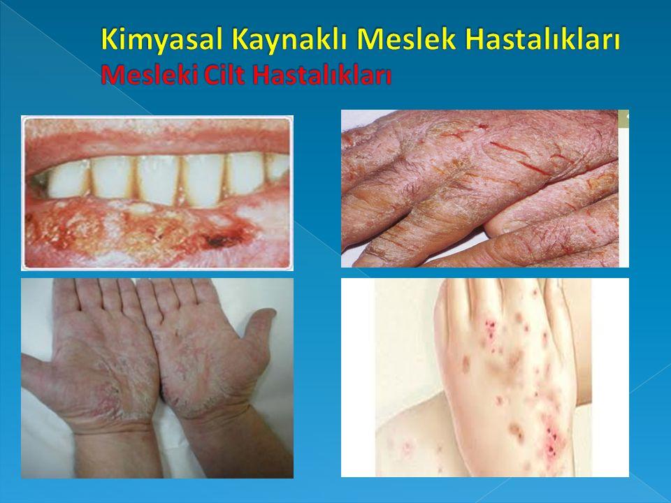 Kimyasal Kaynaklı Meslek Hastalıkları Mesleki Cilt Hastalıkları