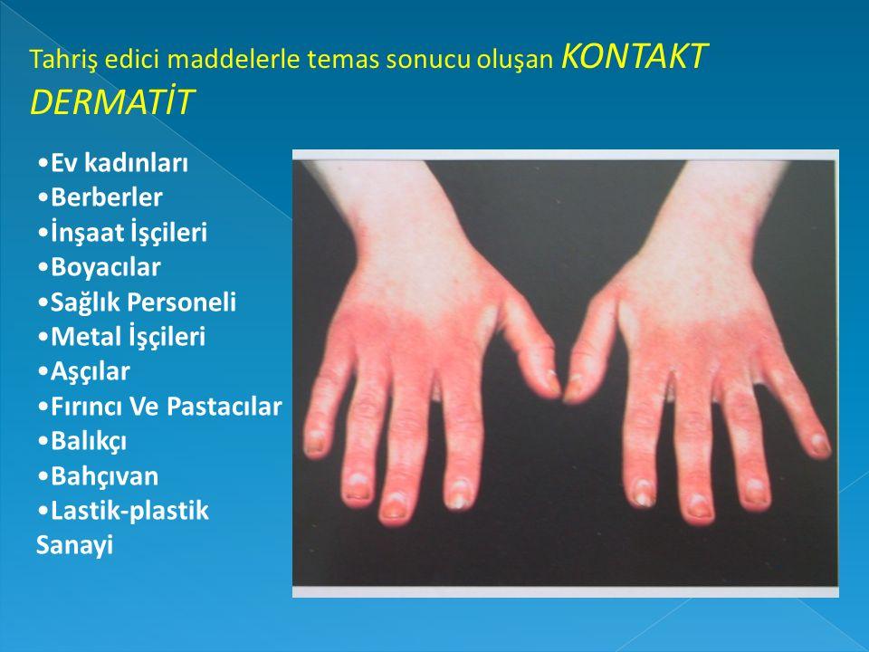 Tahriş edici maddelerle temas sonucu oluşan KONTAKT DERMATİT