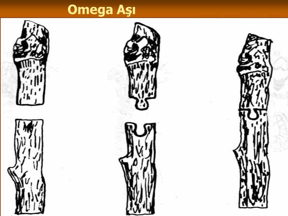 Omega Aşı