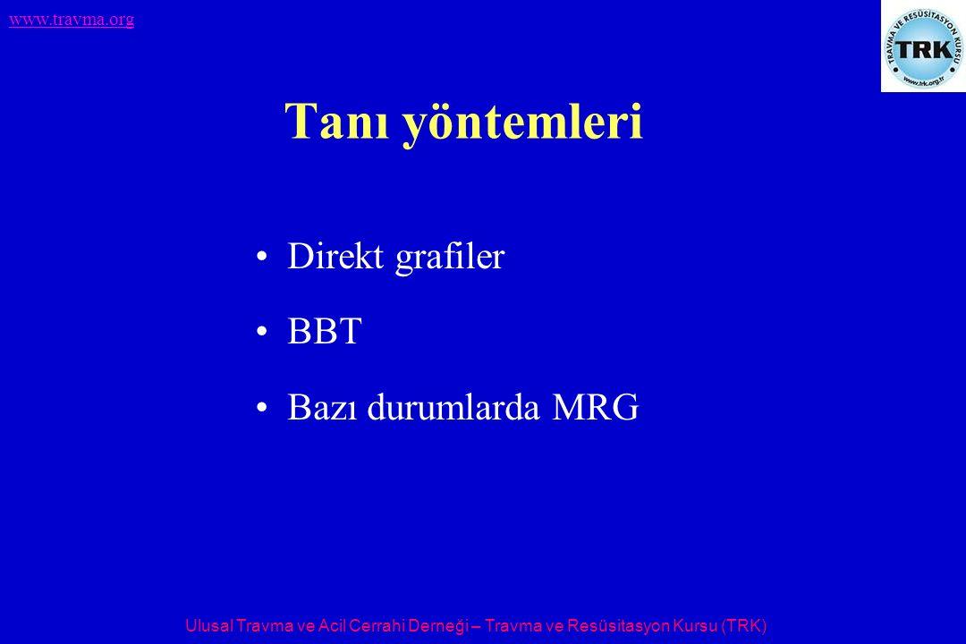 Tanı yöntemleri Direkt grafiler BBT Bazı durumlarda MRG