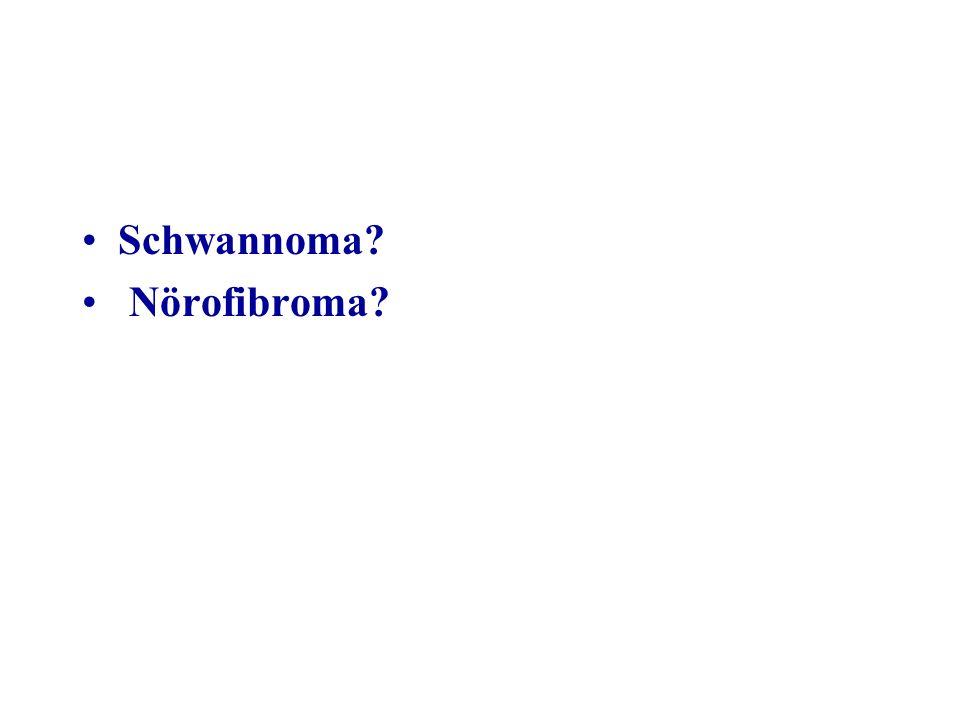 Schwannoma Nörofibroma