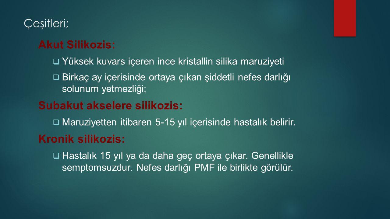 Subakut akselere silikozis: Kronik silikozis: