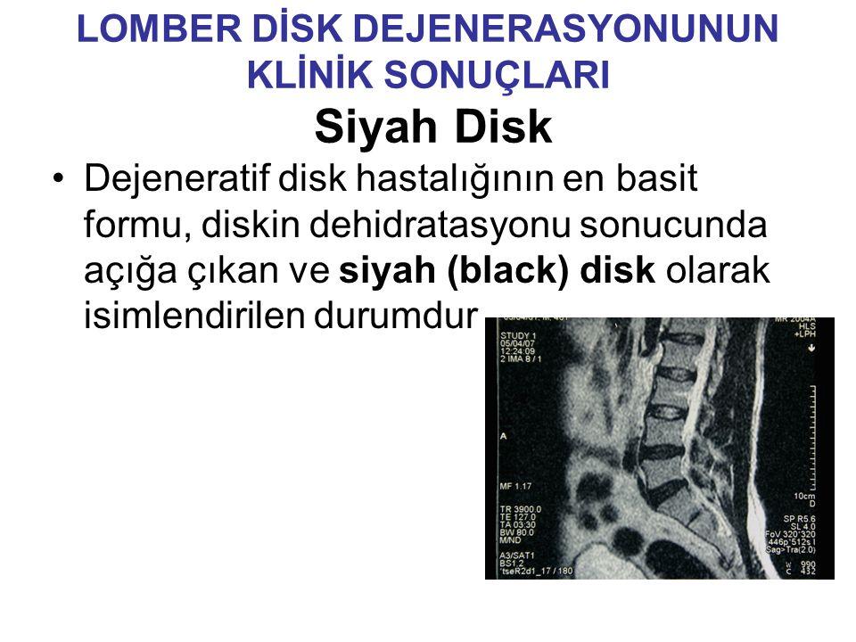LOMBER DİSK DEJENERASYONUNUN KLİNİK SONUÇLARI Siyah Disk