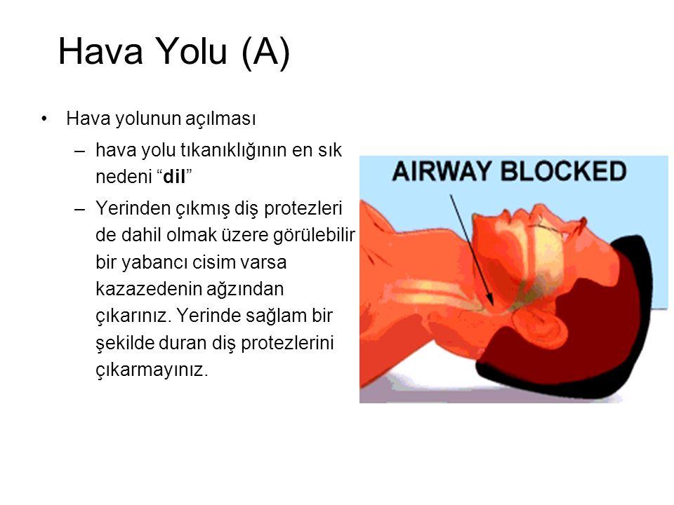 Hava Yolu (A) Hava yolunun açılması