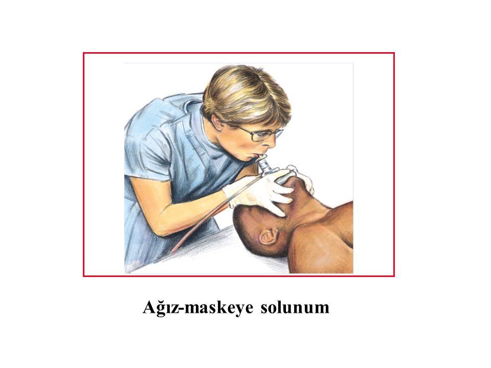 Ağız-maskeye solunum