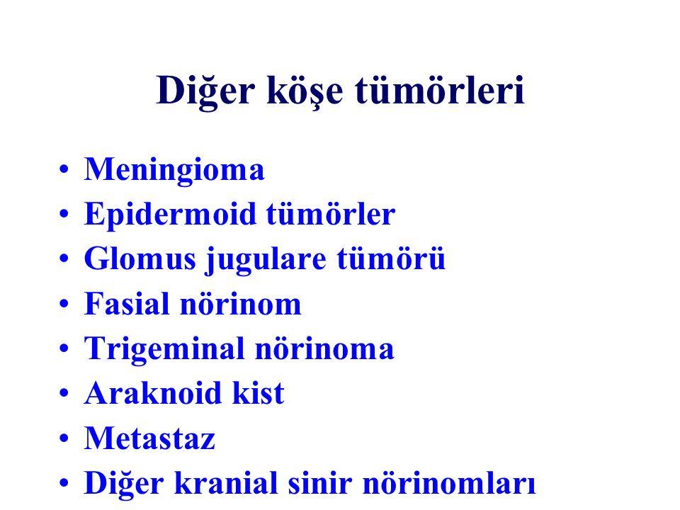 Diğer köşe tümörleri Meningioma Epidermoid tümörler