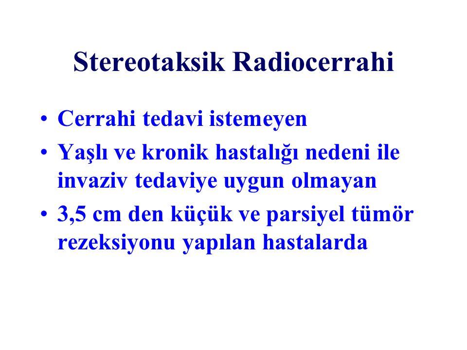 Stereotaksik Radiocerrahi