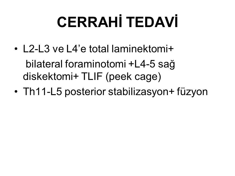 CERRAHİ TEDAVİ L2-L3 ve L4'e total laminektomi+