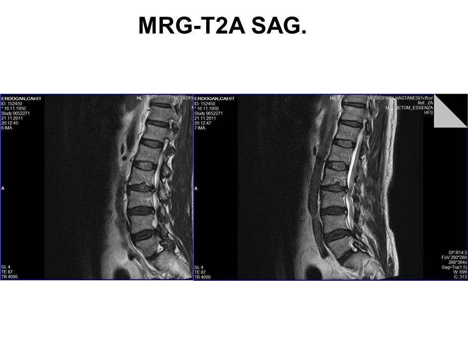 MRG-T2A SAG.
