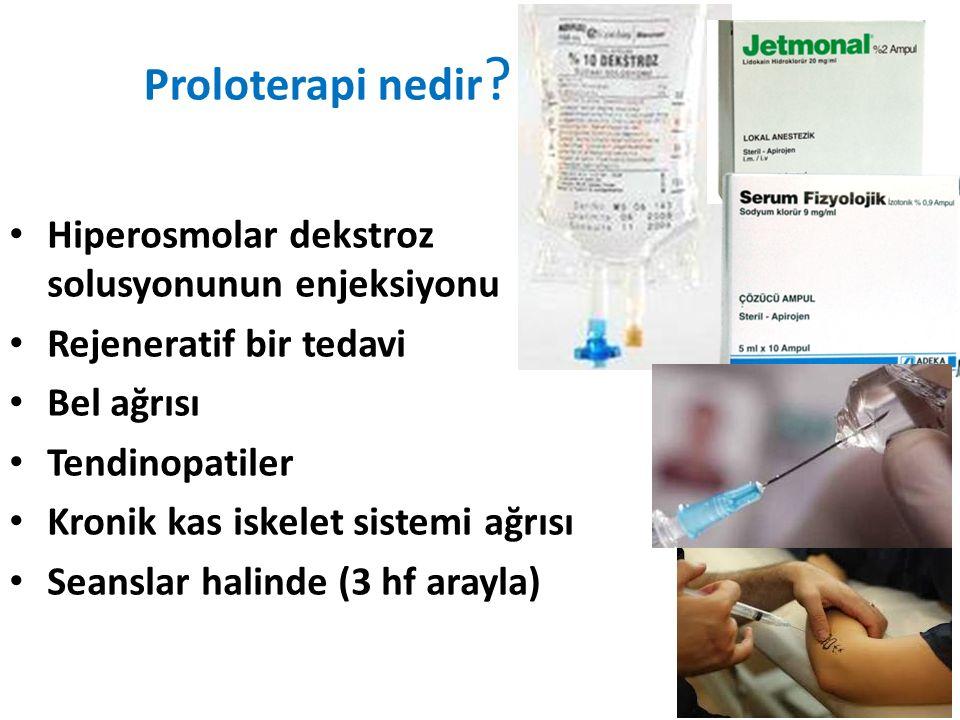 Proloterapi nedir Hiperosmolar dekstroz solusyonunun enjeksiyonu
