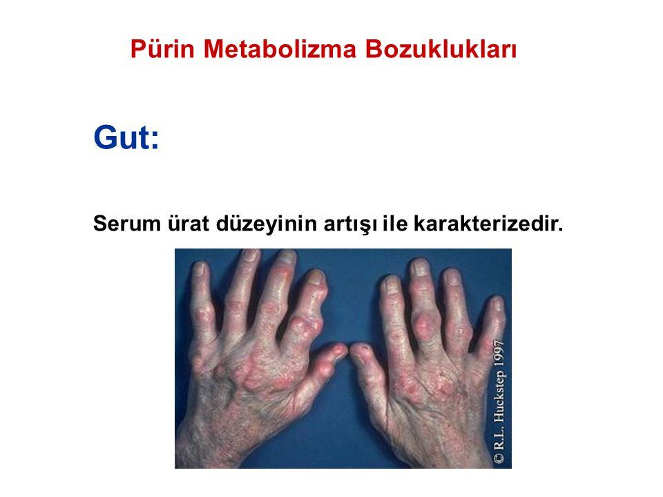 Pürin Metabolizma Bozuklukları