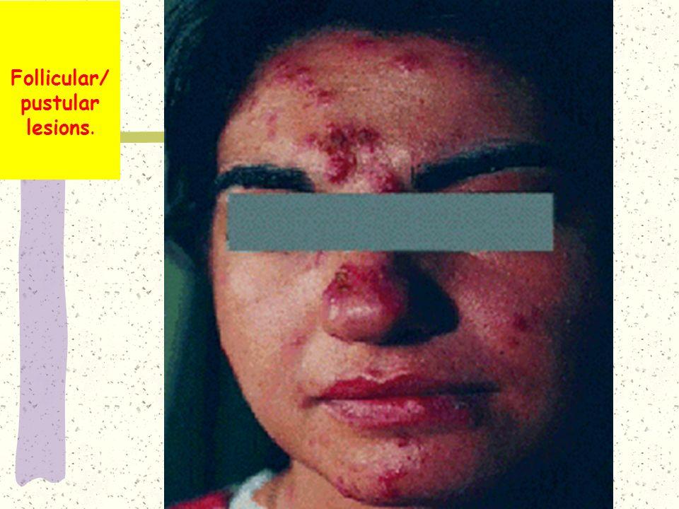 Follicular/pustular lesions.