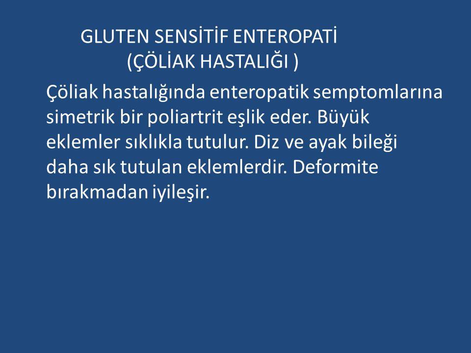 GLUTEN SENSİTİF ENTEROPATİ (ÇÖLİAK HASTALIĞI ) Çöliak hastalığında enteropatik semptomlarına simetrik bir poliartrit eşlik eder.