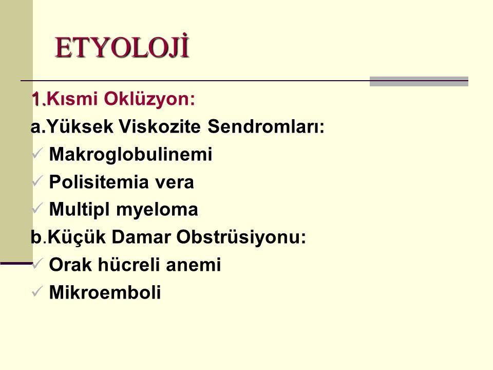 ETYOLOJİ 1.Kısmi Oklüzyon: a.Yüksek Viskozite Sendromları: