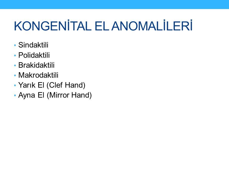 KONGENİTAL EL ANOMALİLERİ